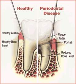 clear-lake-periodontics-robert-devoll