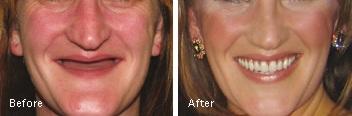 clear-lake-periodontist-robert-devoll